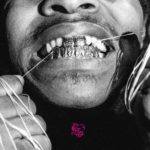 Injury Reserve – Floss